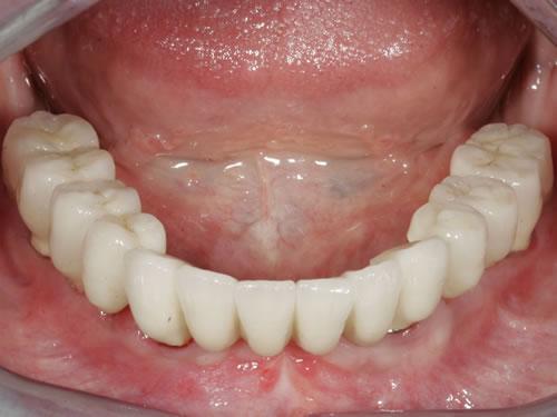 gebrochenen zahn ziehen