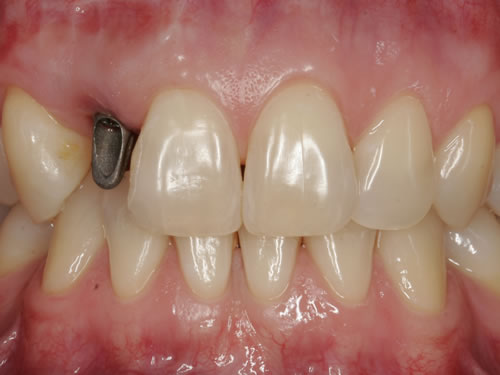 anproben zahnimplantate schmerzhaft