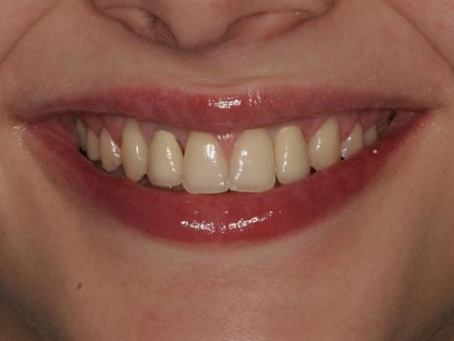 einzelnen zahn ersetzen